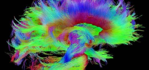 white-matter-fibers-hcp-dataset-red-corpus-callosum_0