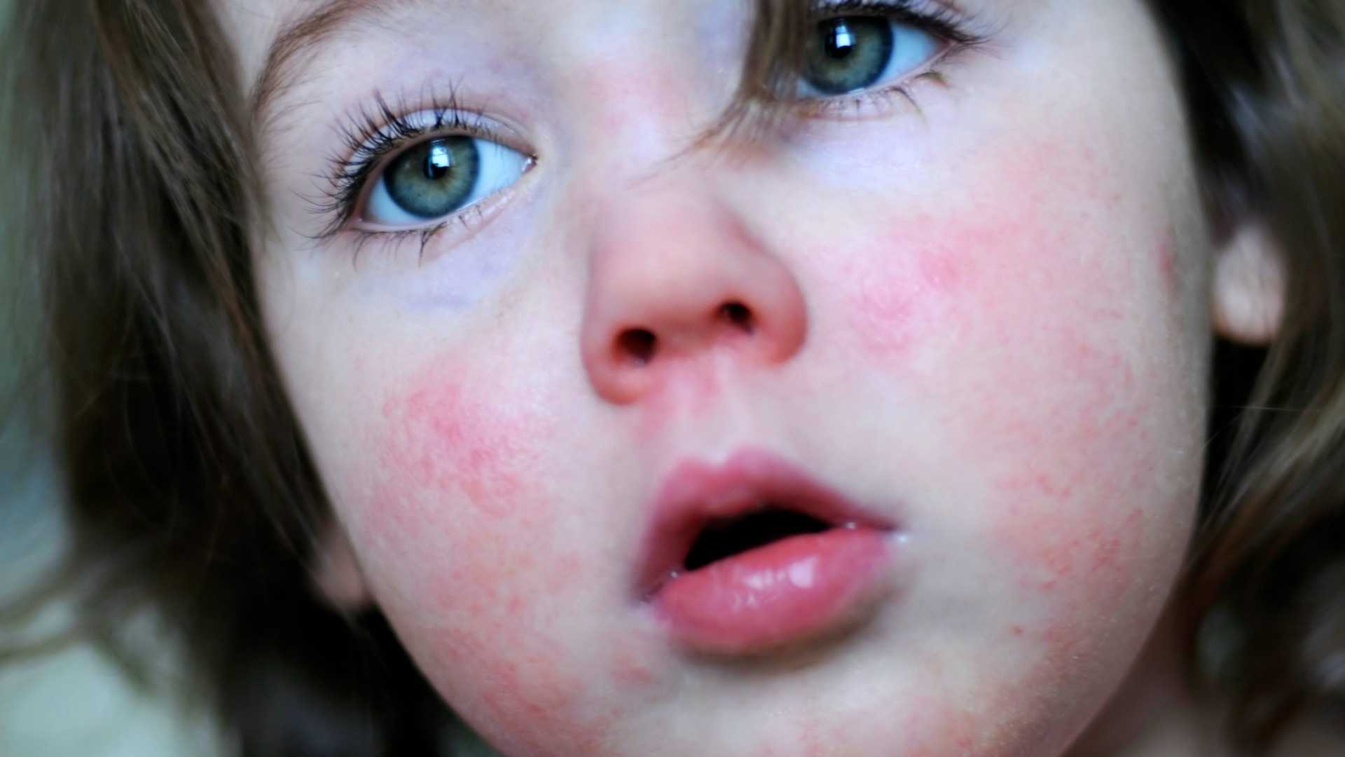 Natural Treatment Scarlet Fever